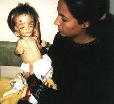 Child and mother Child with depleted uranium Birth Defects